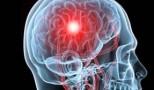 patologie-cerebrala